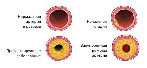 Фото холестериновых бляшек