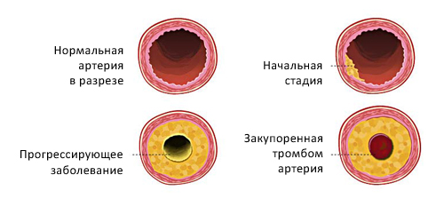 Корень одуванчика при холестерине