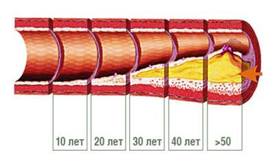 Накопление холестерина в сосудистой стенке