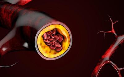 Бляшки холестерина в артерии