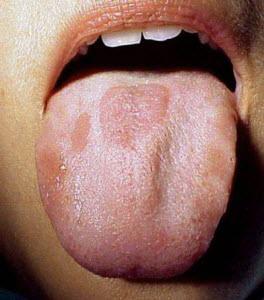 Пятна на языке у взрослых, фото