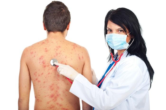 Сыпь и болит живот у ребенка