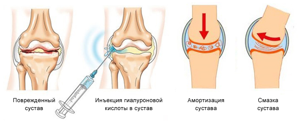 Инъекции для суставов