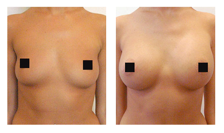 Коррекция формы груди гиалуроновой кислотой