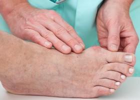 Ортопедический фиксатор для коррекции косточек на ногах