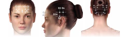Терапия хронической мигрени, точки проведения инъекций