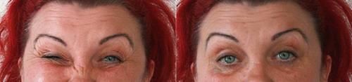 Терапия блефароспазма, фото до и после