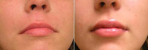 Ботокс в губы, фото до и после