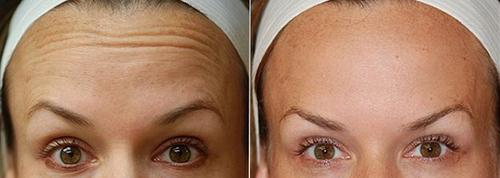 Ботокс в лоб, фото до и после