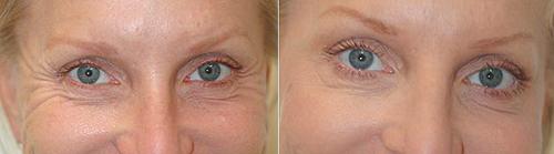 Ботокс вокруг глаз, фото до и после