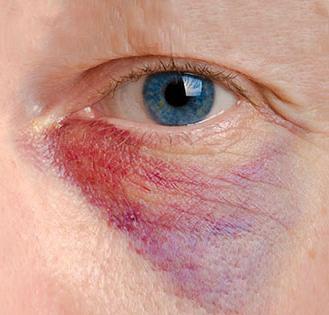 Последствия Ботокса, фото гематомы