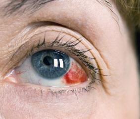 Последствия Ботокса, фото кровоизлияния в глаз