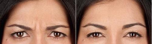 Поднять брови, фото до и после