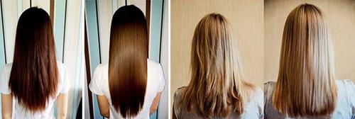 Последствия ботокса для волос, фото