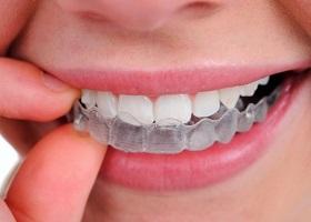 Причины скрипа зубов