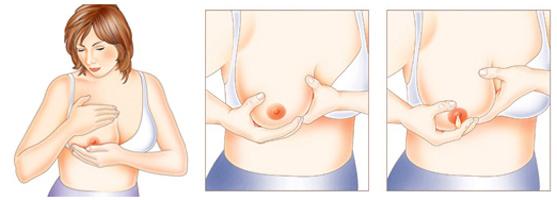 Схема ручного сцеживания грудного молока