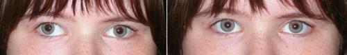 Терапия косоглазия, фото до и после