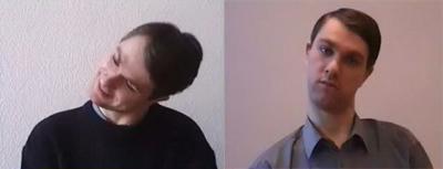 Терапия спастической кривошеи, фото до и после
