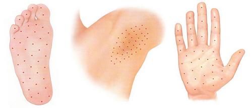 Терапия первичного гипергидроза, точки проведения инъекций