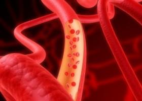 Препараты для улучшения мозгового кровообращения отзывы