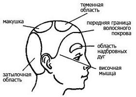 Как снять головную боль при шейном остеохондрозе и повышенном давлении