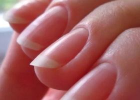 Почему ногти слоятся?