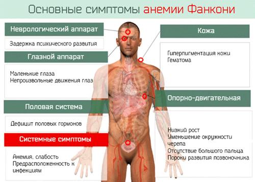 Основные симптомы анемии Фанкони