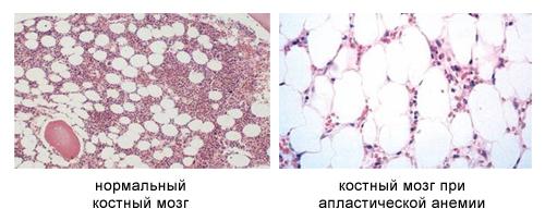 Костный мозг при апластической анемии