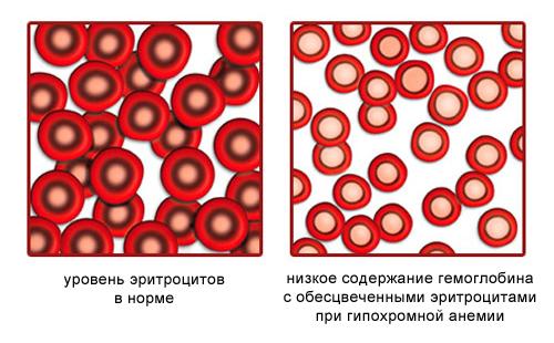 Гипохромная анемия