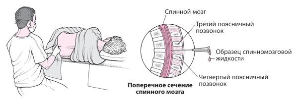 Область прокола при люмбальной пункции