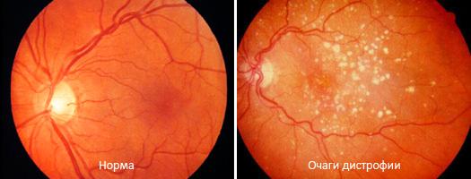 Очаги дистрофии сетчатки глаза