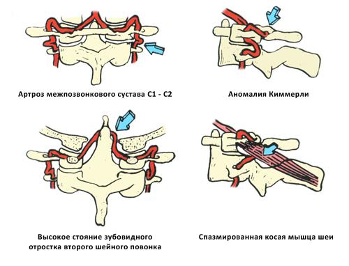 Разновидности сдавления позвоночной артерии после выхода из костного канала