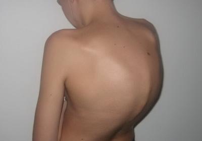 Фото кифоза грудного отдела позвоночника