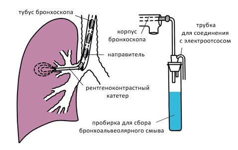 Схема бронхоальвеолярного лаважа с использованием бронхоскопа