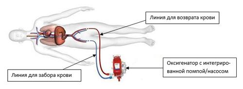 Экстракорпоральная мембранная оксигенация