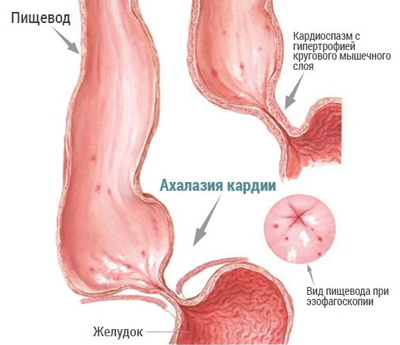 Наглядное изображение ахалазии