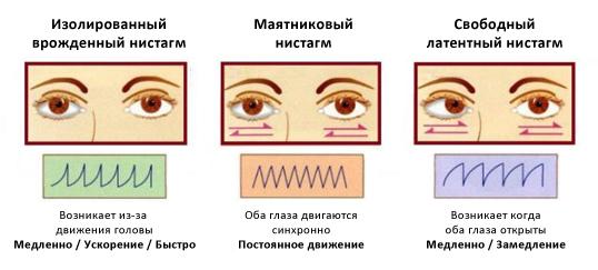 Разновидности и особенности горизонтального нистагма