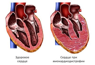 Сердце при миокардиодистрофии в разрезе