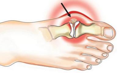 Артрит стопы и пальцев ног