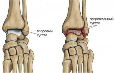 Здоровый и поврежденный артритом голеностопный сустав
