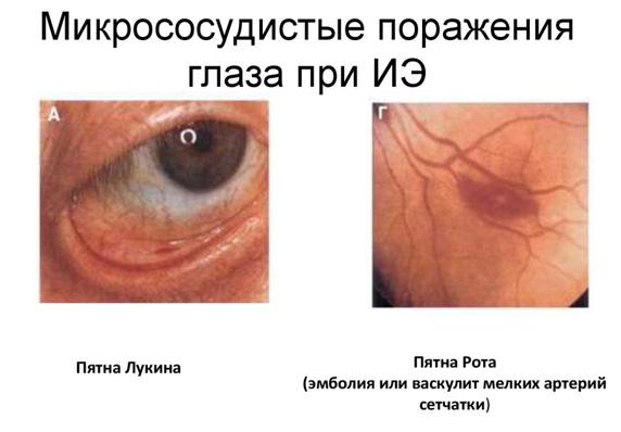 Эндокардит
