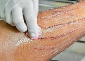 Болезнь кошачьих царапин (фелиноз)