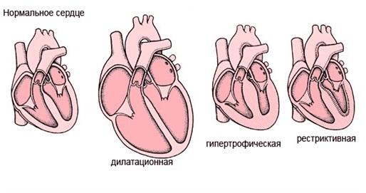 Кардиомиопатии у детей: симптомы и причины болезней сердца