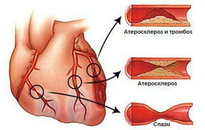 Атипичные симптомы инфаркта у женщин – первые признаки, первая помощь. Симптомы и первые признаки прединфаркта