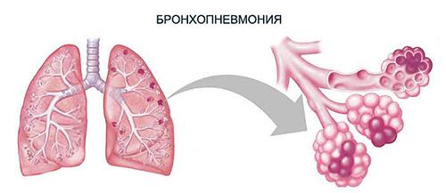Бронхопневмония (бронхиальная пневмония, очаговая пневмония)