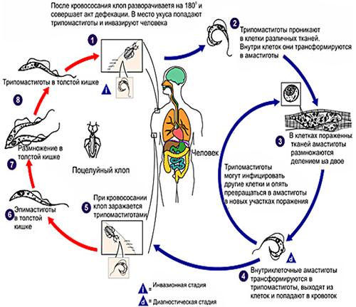 Сонная болезнь (трипаносомоз, болезнь Шагаса)