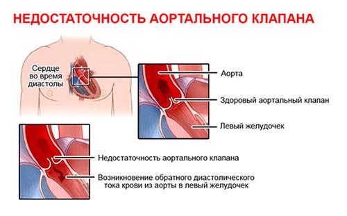 Порок сердца