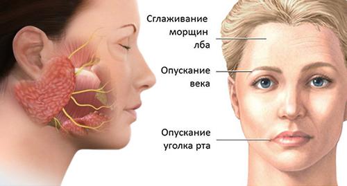 Защемление нерва