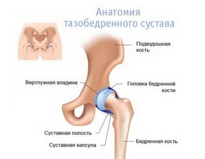 Артроз тазобедренного сустава (коксартроз): симптомы, лечение, степени коксартроза, гимнастика