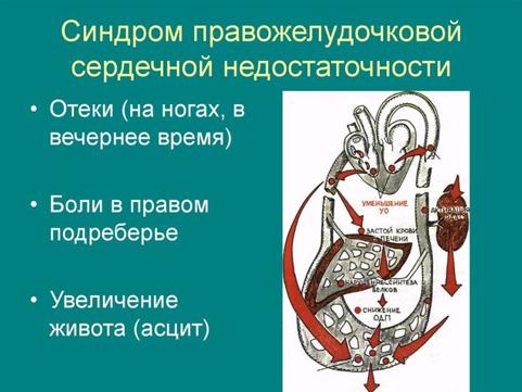 Гепатомегалия (увеличение печени)